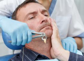 Трябва ли да доплащам за вадене на зъб?