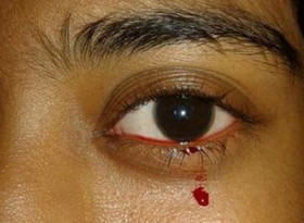 Момиче изплаши лекарите с кървави сълзи