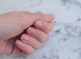 Погледнете ноктите си и тичайте при лекар, ако...