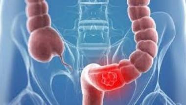 Онколози посочиха често срещан симптом на рак на червата