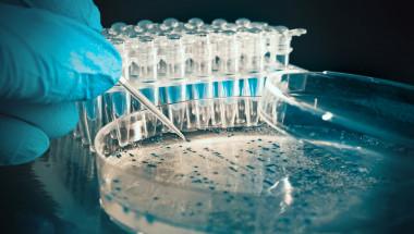 В 80% от случаите виновник за цистита е бактерията ешерихия коли