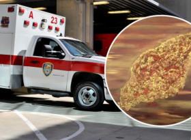 Страшна зараза, която поглъща човешки мозък, плъзна из САЩ