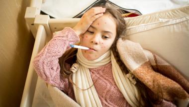Д-р Клара Балджиева: Варицелата не минава без вреда