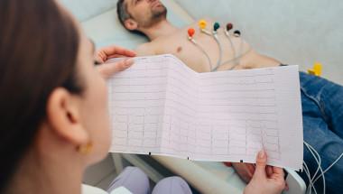 Електрокардиограмата включва ли се в годишния профилактичен преглед?