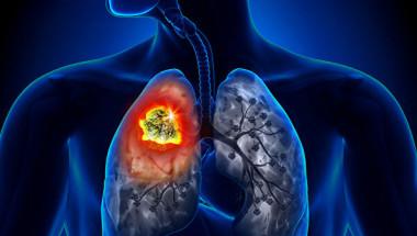Комбинацията от 3 популярни лекарства помага за предотвратяване на рак на белия дроб