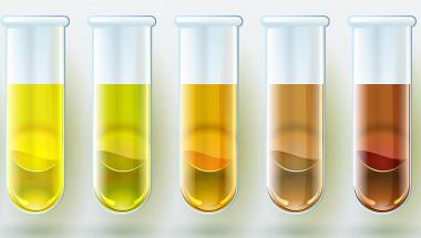 Тъмната урина - симптом на нарушена чернодробна функция
