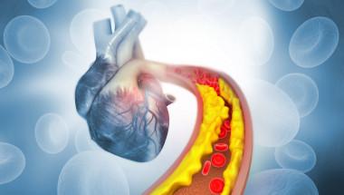 4 вида болка показват повишено ниво на холестерола