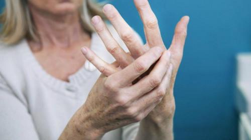 Д-р Севдалина Ламбова: Капиляроскопията – неинвазивен ключов метод в ревматологията