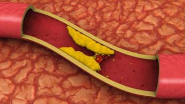 Ноктите сигнализират за проблем с холестерола