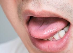 """Необичайното """"парене"""" по езика – симптом на множествена склероза"""