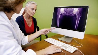 Проф. Неделчо Цачев: Коксартрозата води до деформации на гръбнака, които не се коригират