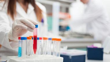 Онколози откриха неочакван симптом на рак, тичайте при лекар, ако...