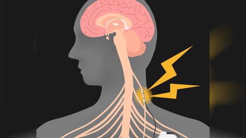 Веска Събева: Стимулацията на вагусовия нерв намалява епилептичните пристъпи