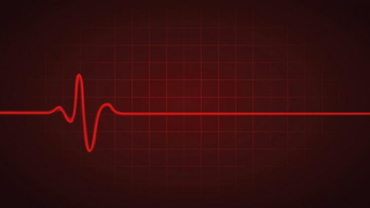"""Учени обясниха колко време след """"смъртта"""" наистина умираме"""