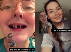 Момиче пиеше сода в продължение на 10 години и това са зъбите й днес ВИДЕО