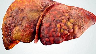 Как да разпознаем цироза на черния дроб
