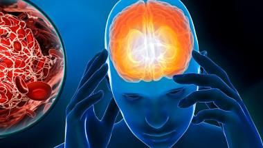Д-р Кристина Садоха, к.м.н.: Хроничната исхемия  на мозъка води до инсулт и слабоумие