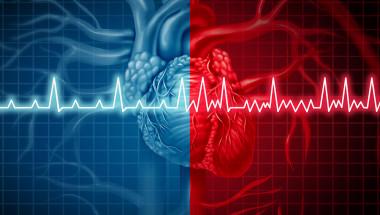 Предсърдното мъждене увеличава риска от инсулт