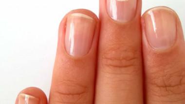 Кои проблеми с ноктите говорят за опасна болест