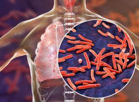 Митове за туберкулозата