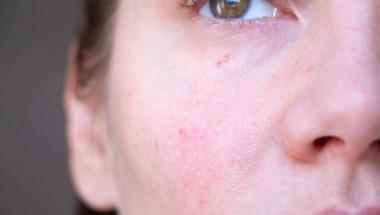 Лекар посочи кои заболявания, могат да се познаят само по лицето