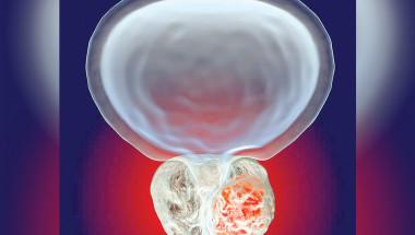 След 50-годишна възраст рискът от болести на простатата драматично скача