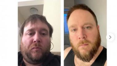 Мъж показа СНИМКИ 1 година, след като отказа алкохола