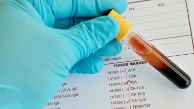 Резултатите от туморните маркери може да са неточни