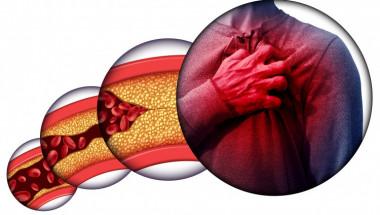 Лекар посочи симптомите за висок холестерол