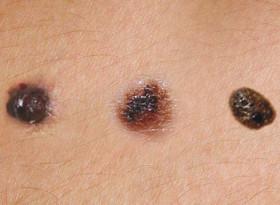 Четири основни признака издават появата на меланом