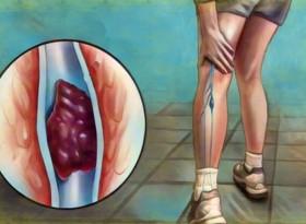 5 прости принципа, които помагат за предотвратяване на кръвни съсиреци