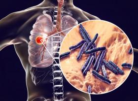 Д-р Лиляна Чунева: Туберкулозно болните с COVID са с 3 пъти по-голям риск от смърт