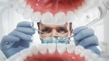 Пломбите на зъбите трябва да се подменят