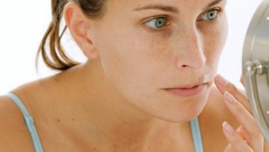 Каква е причината за появата на старчески петна и какво веднага трябва да направите