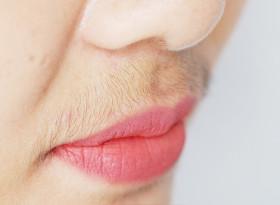Прекаленото окосмяване при жените – сигнал за тумор на яйчниците