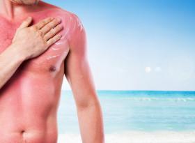 Доц. д-р Весел Кантарджиев: През лятото се увеличават гъбичните кожни инфекции
