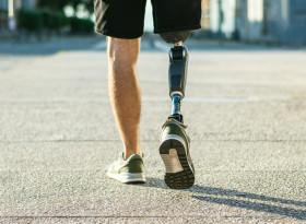 Покрива ли изцяло НЗОК операцията и протезата при ампутация на крайник?