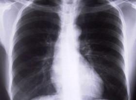 Сигнали, алармиращи за рак на белия дроб