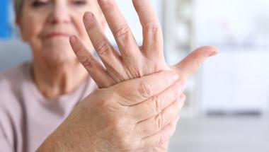 Митове за артрита