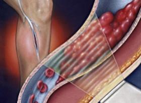 Как да избегнем тромбоза след COVID-19