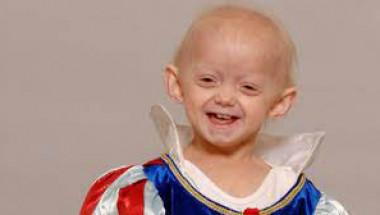 10-годишно момиче почина от рядка болест