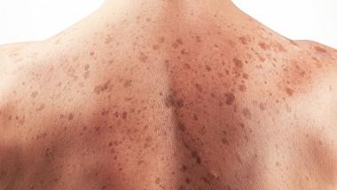 7 признака на рак на кожата, на които никой не обръща внимание
