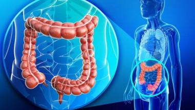Как да разпознаем рак на дебелото черво