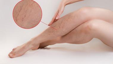 Д-р Любомир Петков: Разширените вени започват с паякообразни венички по краката