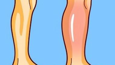 3 прости упражнения за облекчаване на подуването на краката