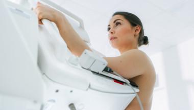 Има ли възрастово ограничение за талон по Здравна каса за мамография?