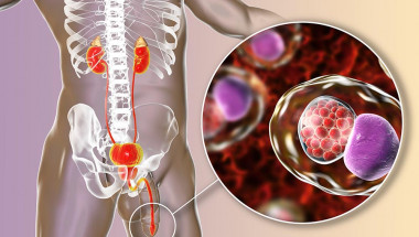 Д-р Даниел Янков: Хламидиите водят до стерилитет, ако се неглижират