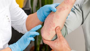 Болести на черния дроб водят до фотодерматит