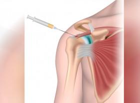 Терапевтичните блокади облекчават болката в ставите