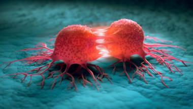 Учени откриха начин за забавяне на растежа на раковите клетки